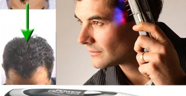 Prístroj na podporu rastu a posilnenie vlasov. Zmenšená, ale rovnako účinná, verzia laserových prístrojov ako v salónoch.